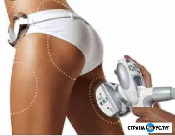 LPG-массаж Тюмень