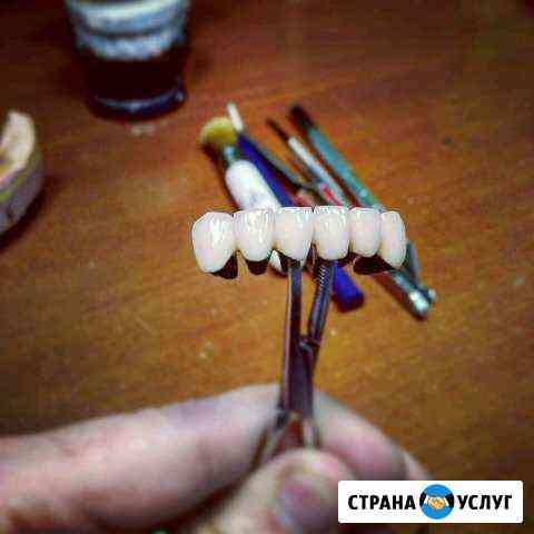 Услуги зубного техника Махачкала