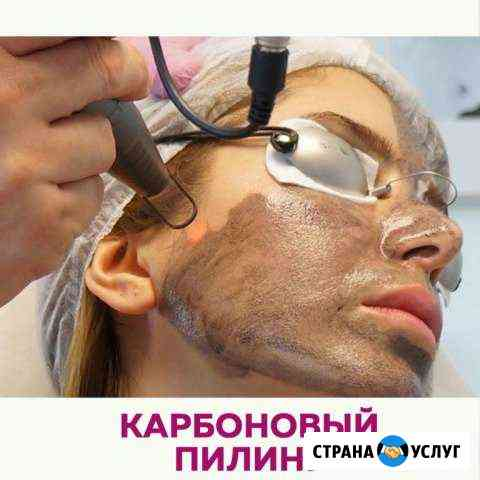 Карбоновый пилинг Нижний Новгород