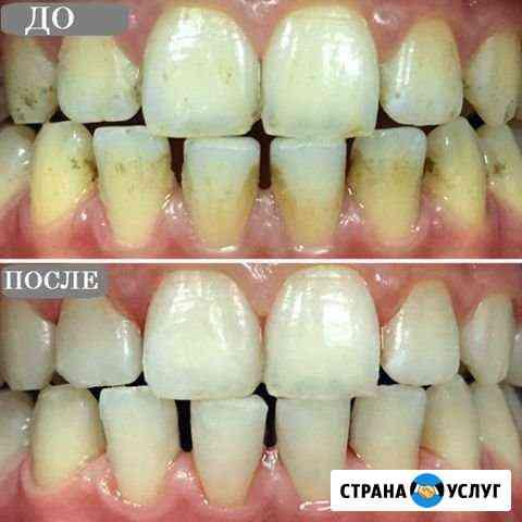 Профессиональная чистка зубов Грозный