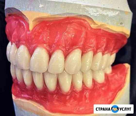 Съёмные зубные протезы Махачкала