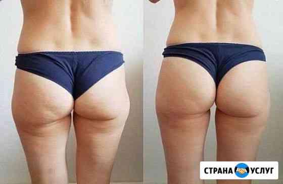 Антицеллюлитный массаж, похудение Калининград