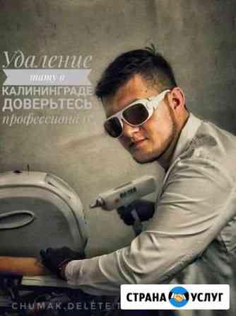 Удаление тату Калининград