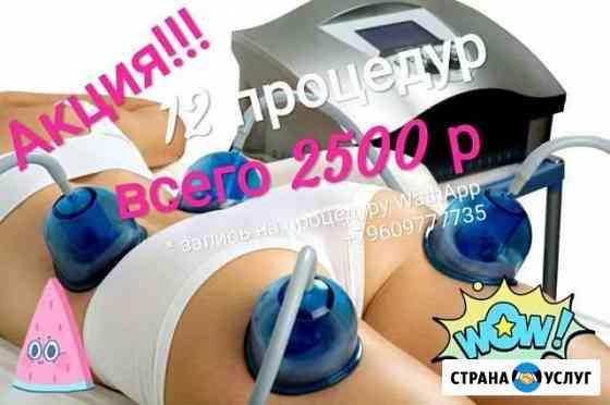Массаж вакумно-ролликовый Starvac Томск